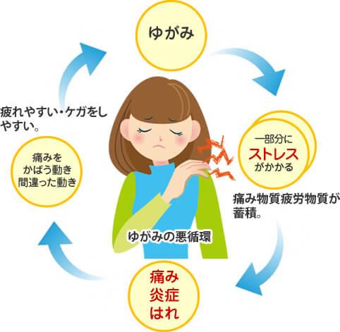 歪みの悪循環・一部分にストレス⇒痛み・腫れ炎症⇒間違った動き⇒ゆがみ